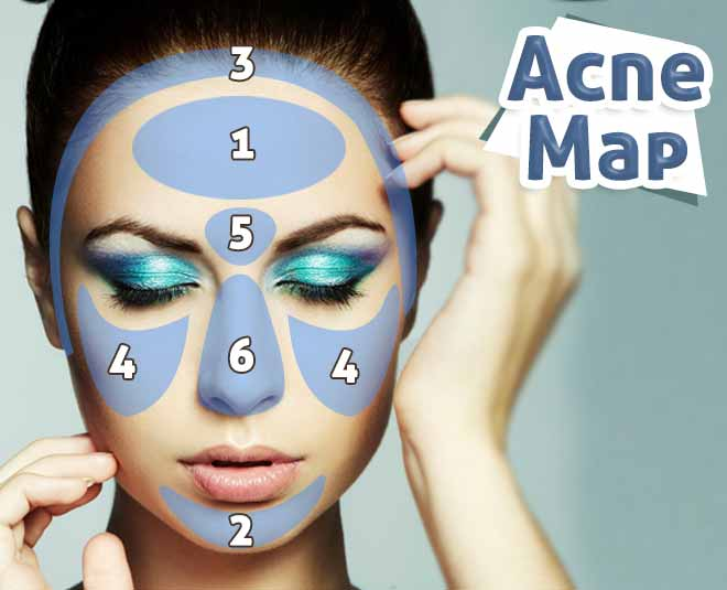 Acne map tell you about your health problem  ()