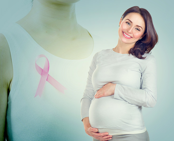 pregnancy and breast cancer main