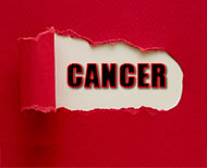 Cancer Preventing Foods ()