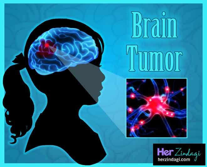 brain tumor health main