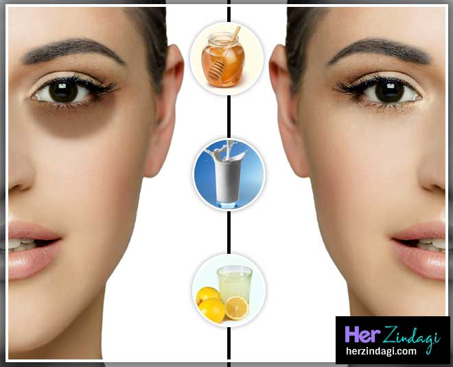 home remedies to get rid of dark circle main