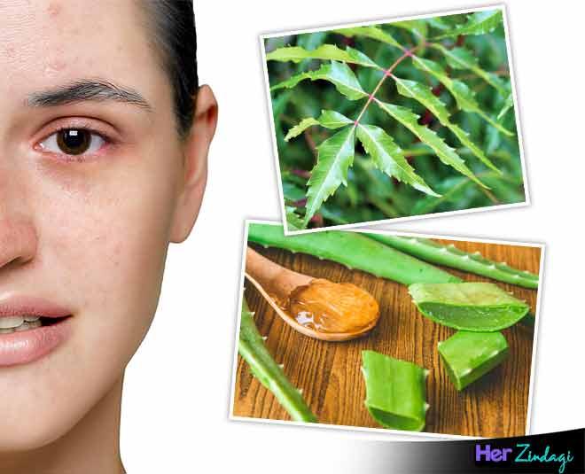 things for skin allergy main