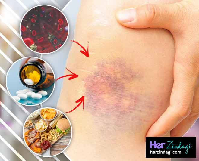 bruises on body card ()