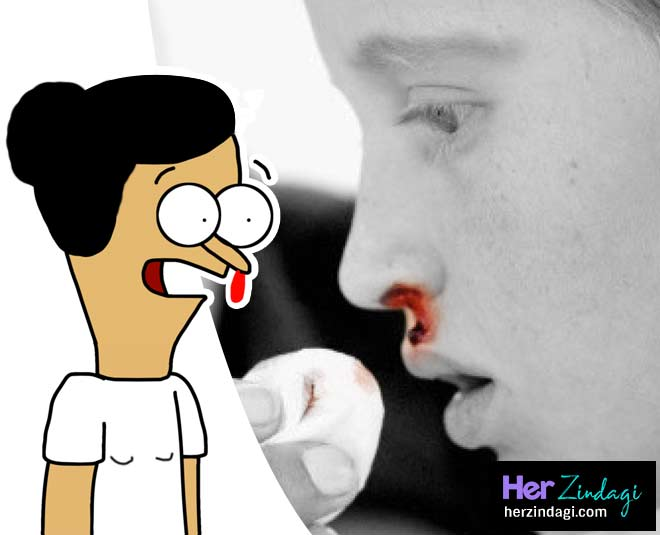 home remedies for nose bleeding main