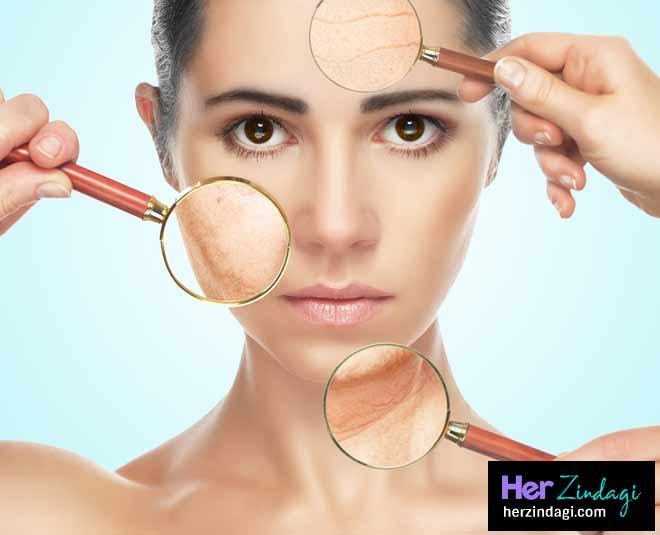 skin problem solution main