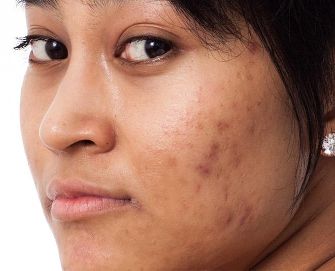 Causes Of Skin Pigmentation All Web Designing
