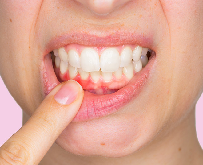 gums problem health card ()
