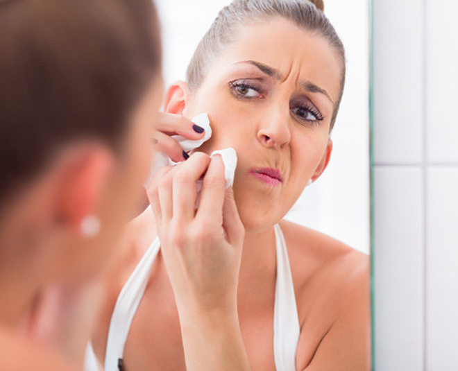 skin care tips for pimple