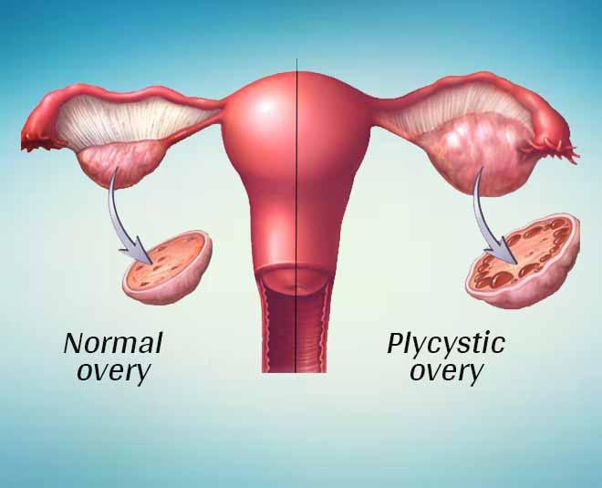 PCOS health women inside