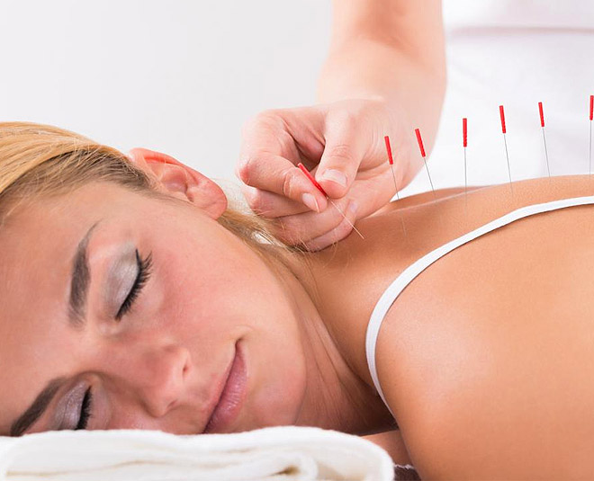 acupuncture therapy for sleep main