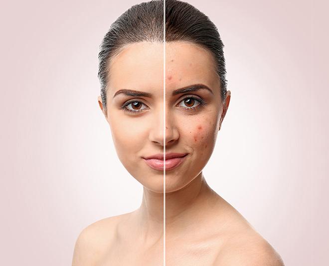 acne problem beauty main