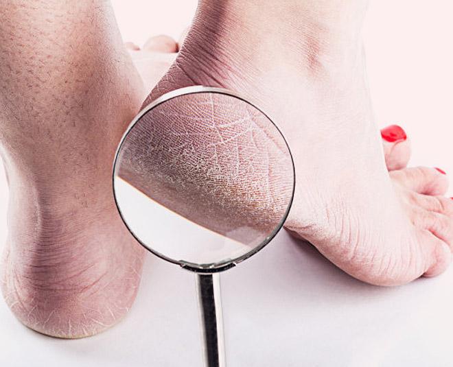 cracked heels remedy