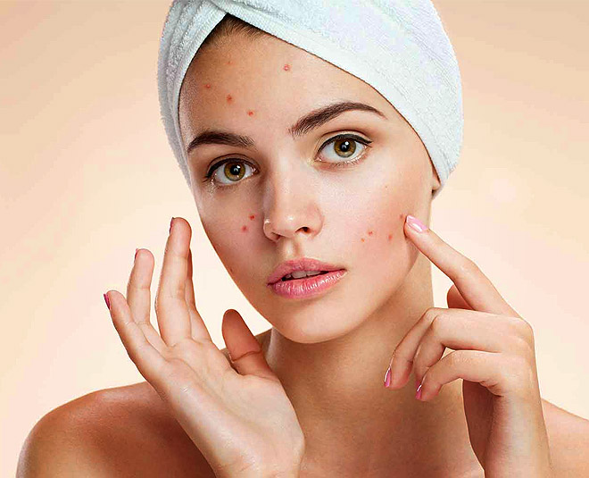 home remedy for acne main