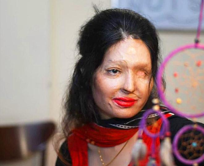 acid attack survivor reshma qureshi writer being reshma main