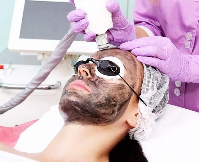 carbon peel facial deep clean skin Main