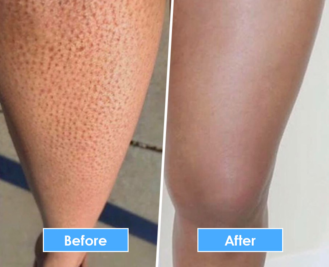 chemical peel for strawberry legs