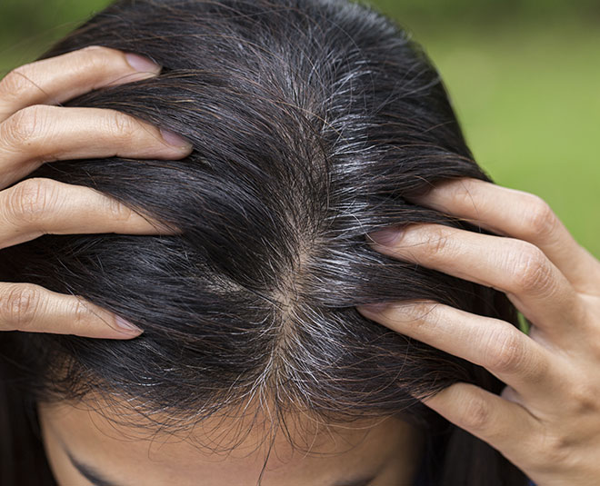 home remedies hair greying