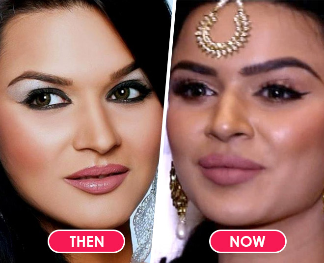 tv actresses who have undergone plastic surgery main