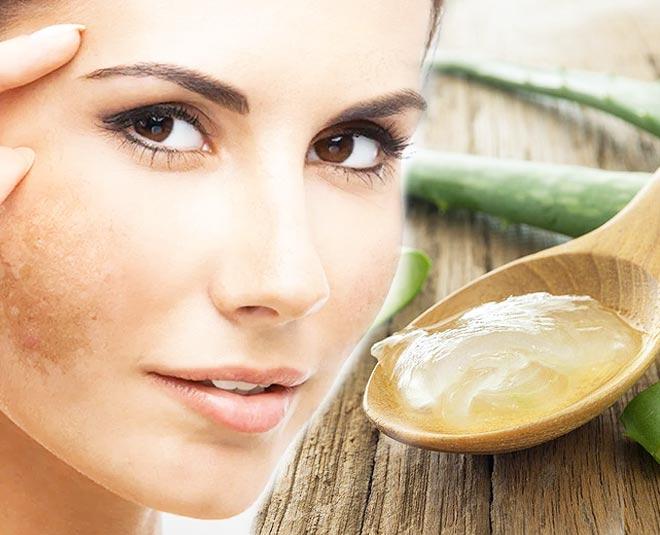 aloe vera for scars and pigmentation Main