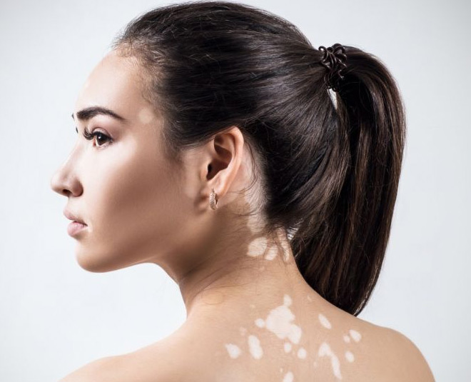 white spots natural tips main