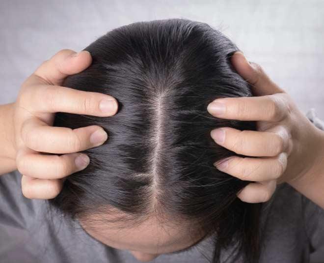 dandruff and dry scalp