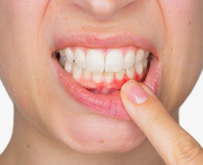 home remedies for bleeding gums tips