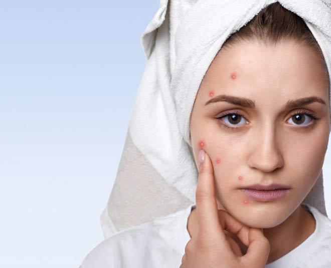 skin care in winter main