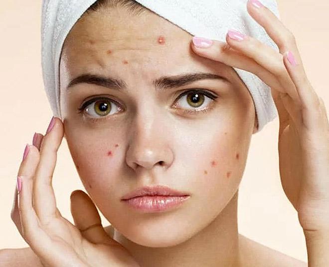 Acne Marks Removal Creams in India