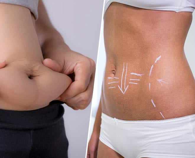 types of belly fat and its issues