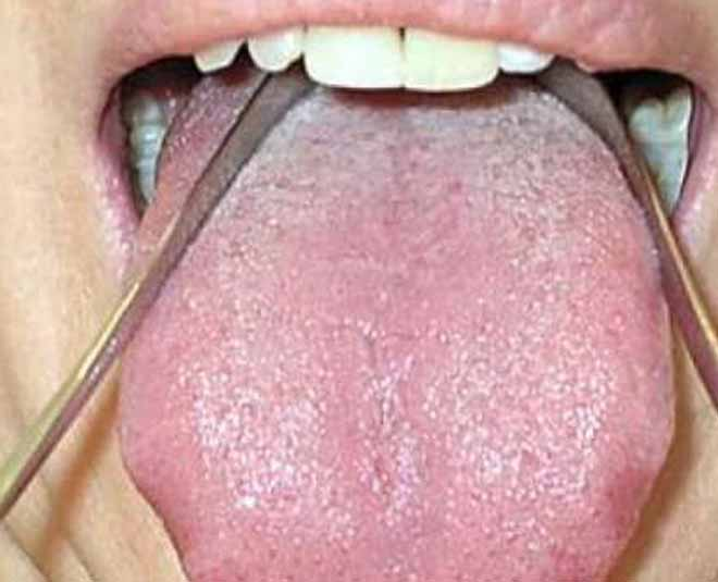 Tongue Cleaning