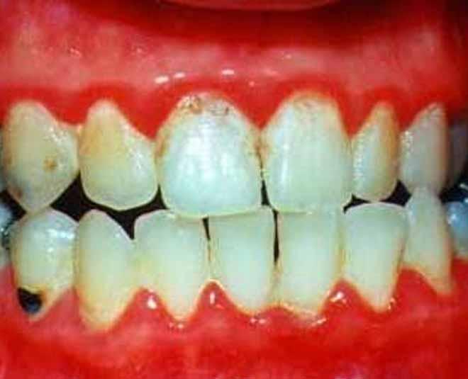 gum problem