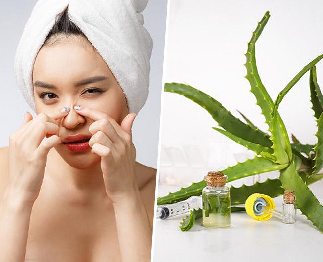 aloe vera gel for acne overnight pic