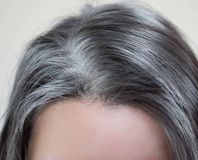 white hair remedies