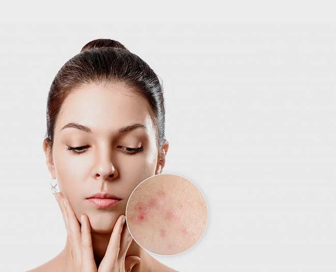 acne overnight solutions