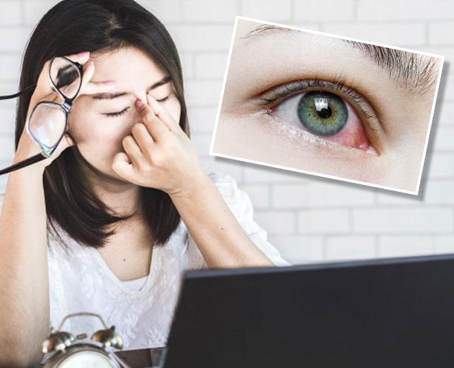 eye redness remedy Main