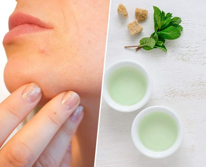 green tea acne main