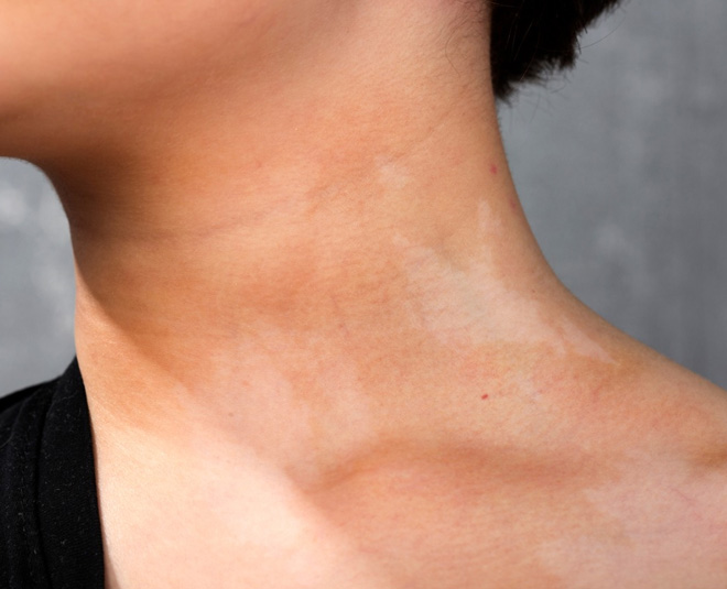 neck pigmentation Main