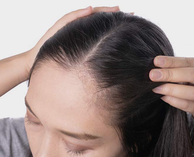oil for thinning hair