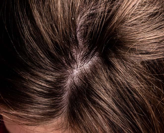 scalp scrub