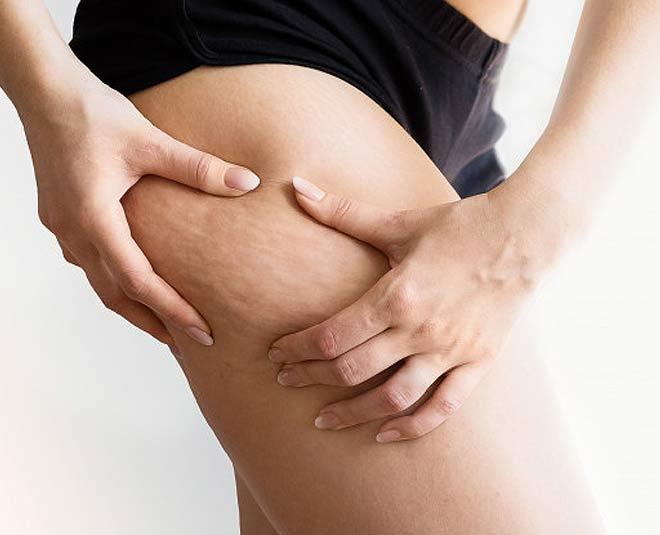 cellulite health main