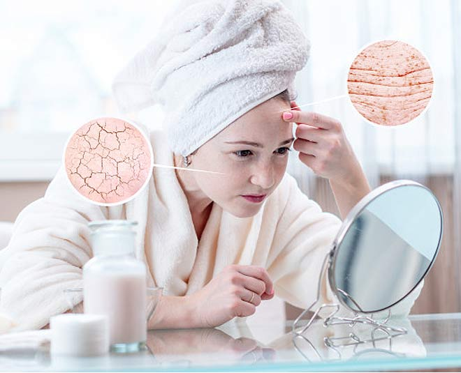 dry skin reasons main