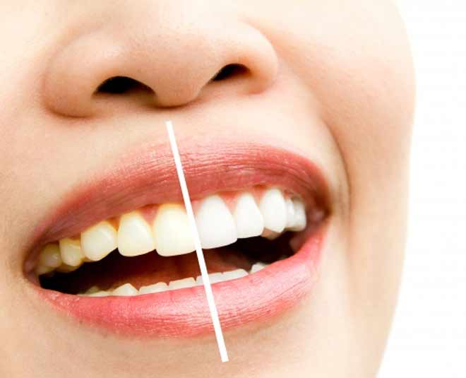 best home remedies for yellow teeth