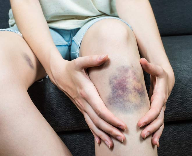 home remedy bruises