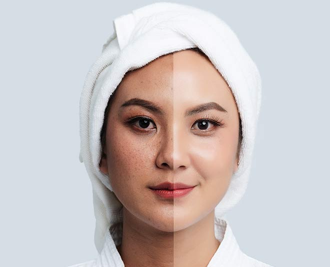 patches on face during pregnancy main