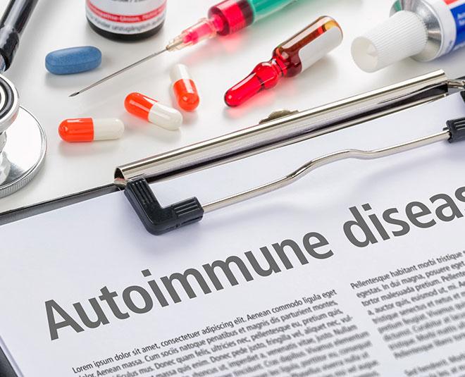auto immune  m