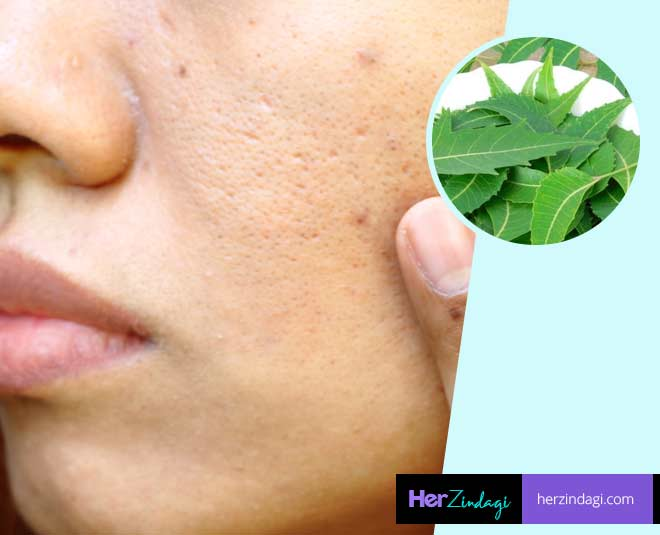 best face pack with neem
