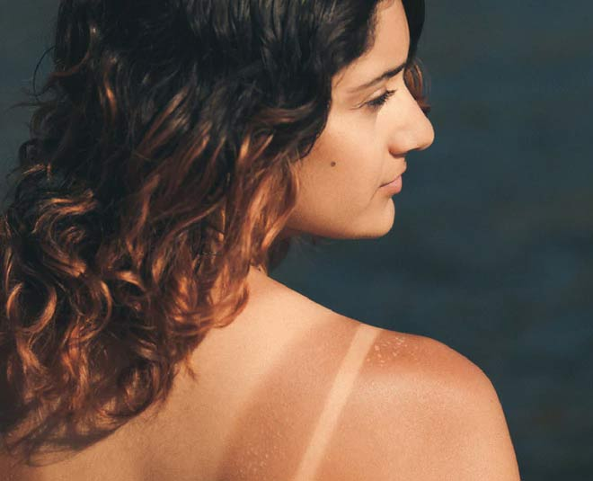best ways to reduce tan lines