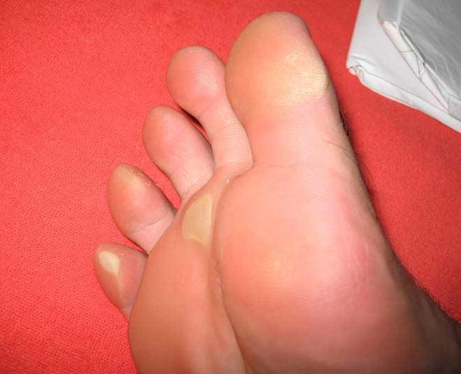 foot care dead skin