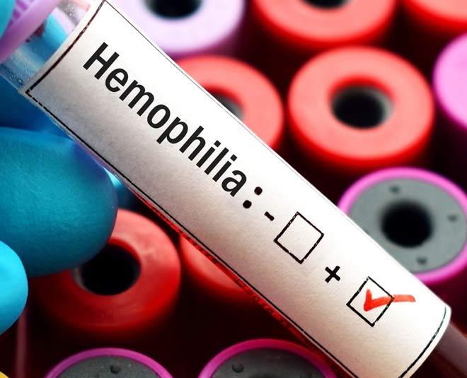 haemophillia  m
