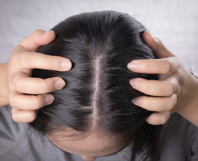 stop a itchy scalp